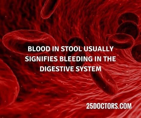 Which Doctor To See For Blood In Stool by What Do You Do If You Find Blood In Your Medicine And Healthcare