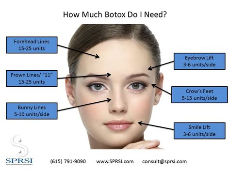 With The Most Botox by How Much Botox Will I Need Sprsi