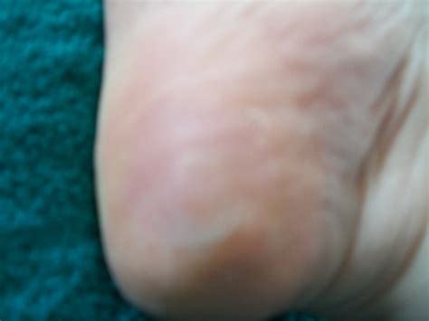 Planters Wart On Heel by Colleen S Plantar Wart Colleen S Plantar Wart Removal