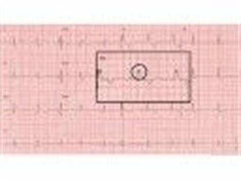 pattern recognition ecg 1000 images about medical interpreting ekg rhythms on