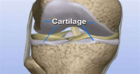 supplement to rebuild cartilage brian s help4osteoarthritis comhelp4osteoarthritis