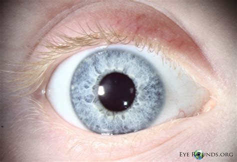 Oca Search Oculocutaneous Albinism The Of Iowa Ophthalmology