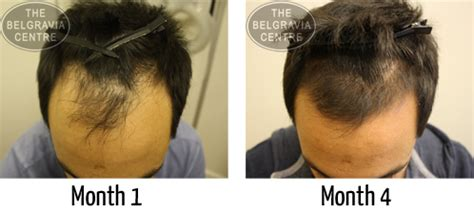 rogaine success stories receding hairline prevent and regrow a receding hairline