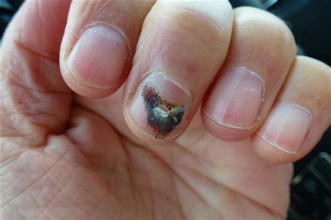 one black fingernail nail fungus cure treatment how to combat and treat nail