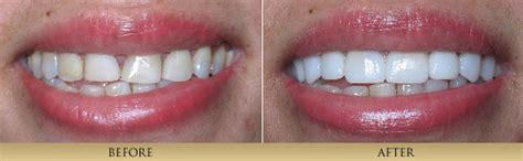 11 best porcelain veneers images area leading dentists of dentistry