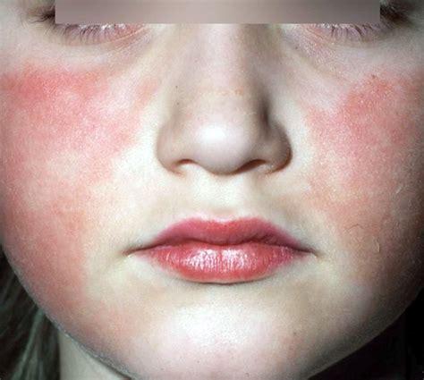 parvo disease erythema infectiosum parvovirus b19