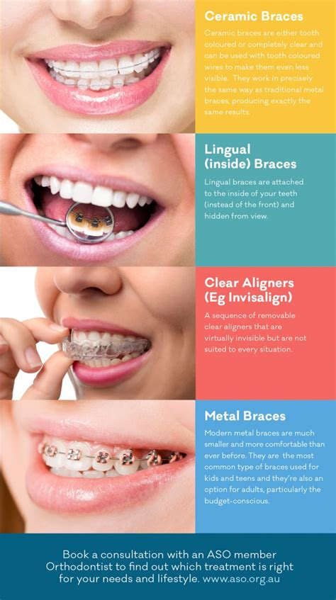comfort dental braces cost best 25 teeth straightening ideas on pinterest retainer