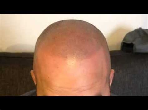 hair tattoo before and after scalp micropigmentation before and after a hair loss