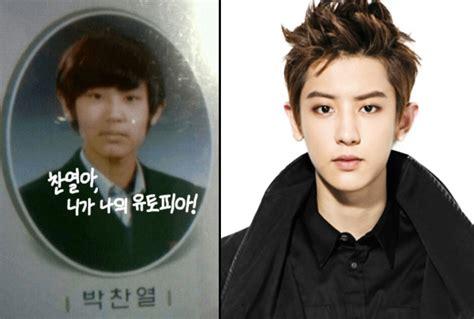 kris exo plastic surgery ศ ลยกรรมหร อไม ด ภาพเท ยบช ดๆ exo ก อนเข าวงการหน าตา