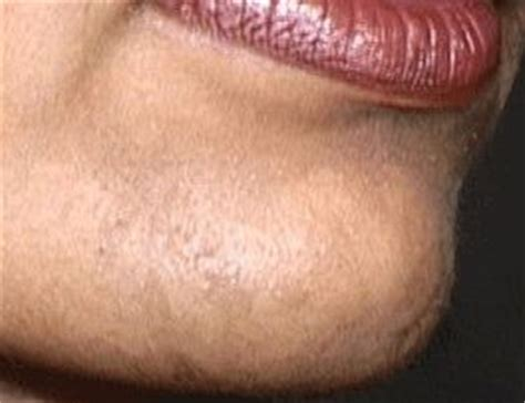 hair i woman s chin sideways 25 trending chin hair removal ideas on pinterest chin