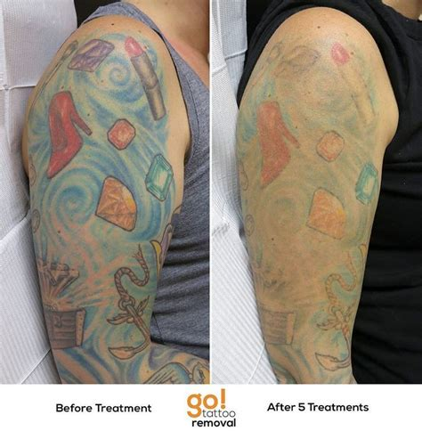 tattoo removal recovery 696 best images about removal in progress on