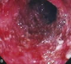 Losing Blood Through Stool by Gi 14 Inflammatory Bowel Disease Flashcards Cram