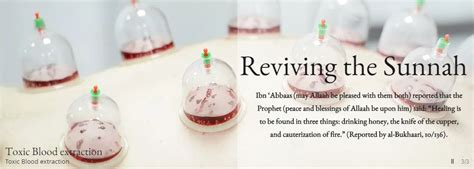 Hijama Cupping Detox by Detox Toxic Blood Extraction Hijama In Cupping