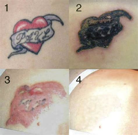 tattoo removal process pictures removal million dollar