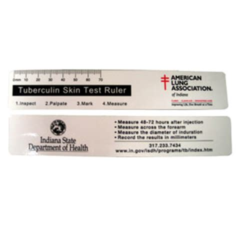 Printable Ppd Ruler | rulers to measure tb test reactions tuberculin skin