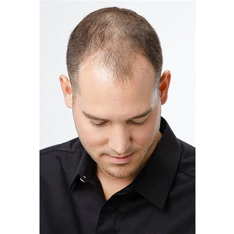 hair shops who work with thin balding hair in chicago thinning hair hair loss treatment wig hair loss lace