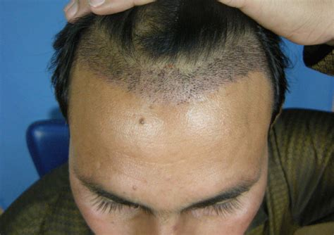 hair transplant timeline photos image
