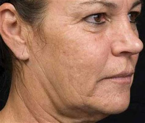 jowls and sagging around mouth treatment image gallery sagging face