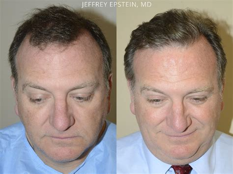 hair transplant before and after hair transplants for men before and after photos hair