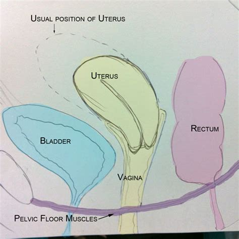 anatomy of the uterus with diagram pelvic organ prolapse part 1 s health