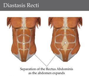 post pregnancy abdominal exercises