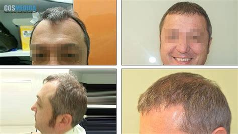 hair transplant cost in tianjin china cosmedica hair transplant cost turkey hairsite com