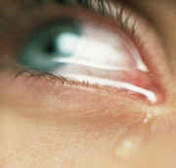 the crying eye home of forward emails tears i cry best poetry and