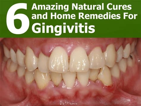 gingivitis treatment 6 cures and home remedies for gingivitis