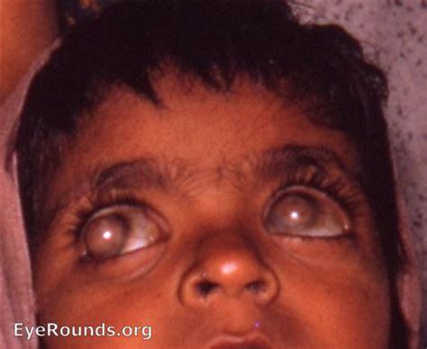 On His Blindness Corneal Staphyloma With Keratomalacia Ou Eyerounds Org