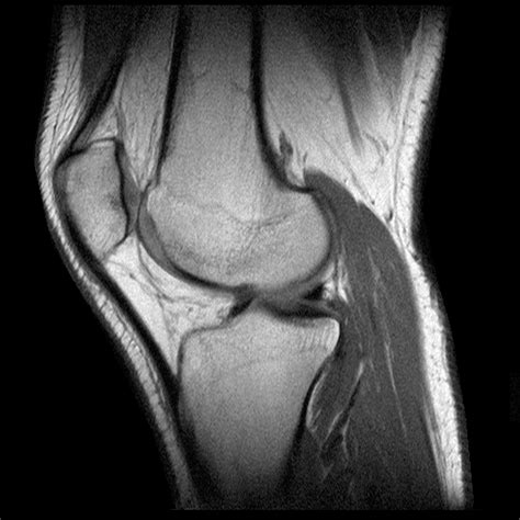 menisco interno anatomia de la rodilla