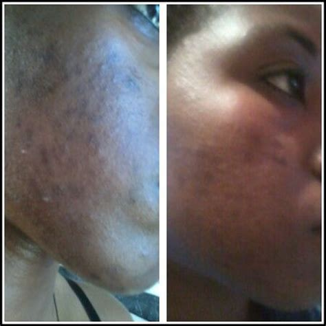 soaps information soaplands joiners movers and before after 2 months with derma roller 5mm and 100