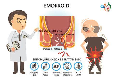 intervento emorroidi interne emorroidi cure alimentazione rimedi naturali e interventi