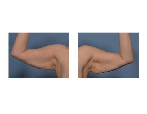 explore plastic surgery dr barry eppley arm lift explore plastic surgery dr barry eppley arm lift arm lift