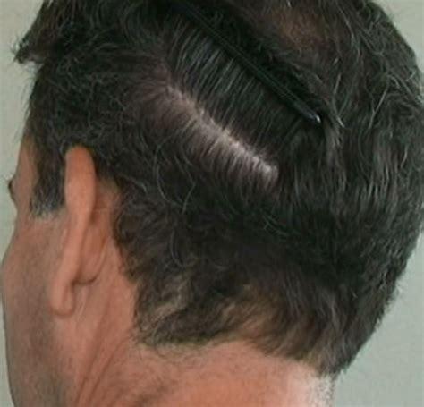 fut hong kong hair transplant fut hair transplant fut satya hair transplant clinic