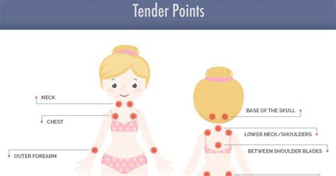 fibromyalgia tender points diagram fibro trigger points diagram fibromyalgia diagram