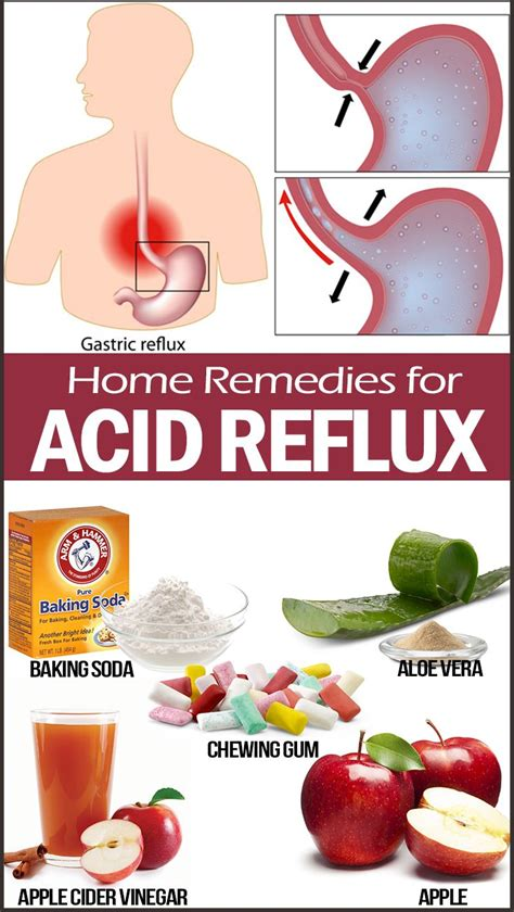 30 home remedies for acid reflux health