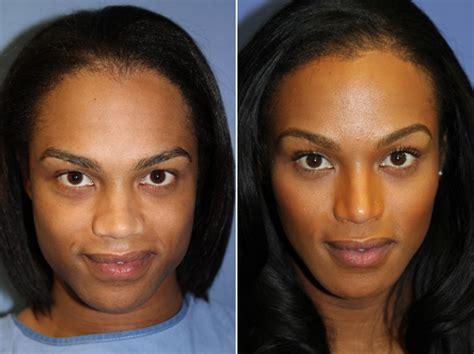 jobs in hair transplant technicianjobs london forehead brow lift photos