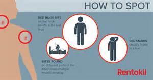 How To Treat Bed Bug Bites Bed Bug Bites What You Need To Know