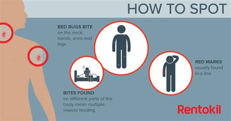 how to look for bed bugs bed bug bites what you need to know