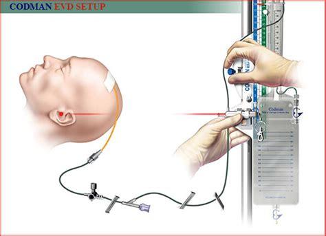codman evd drain external ventricular drain evd dr osborn