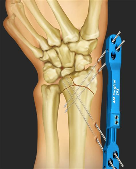 What You Need to Know About Treatment for a Distal Radius ... Fractured Wrist Treatment