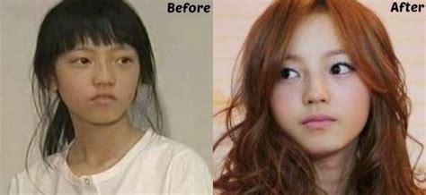 artis k pop yang pernah membuat pembedahan plastik di dagu kegilaan artis k pop yang melakukan pembedahan plastik