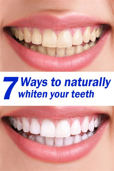 7 Reasons To Get Your Teeth Whitening Procedure Done By A Pro by 7 Ways To Naturally Whiten Your Teeth