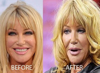 suzanne somers celebrity plastic surgery 24 has suzanne somers plastic surgery gone wrong famous