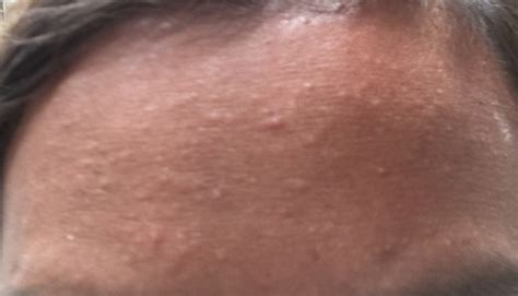 small bumps on forehead general acne discussion acne