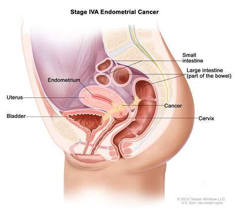 Endometrial Cancer Treatment Pdq 174 Patient Version