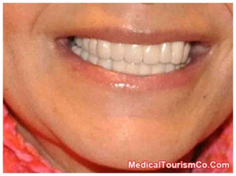 for dental implants in mexico dental implants in los algodones mexico med tourism co llc