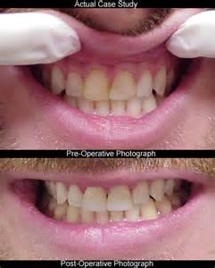 dental bonding at home atlanta cosmetic dentistry teeth bonding seabreeze dental