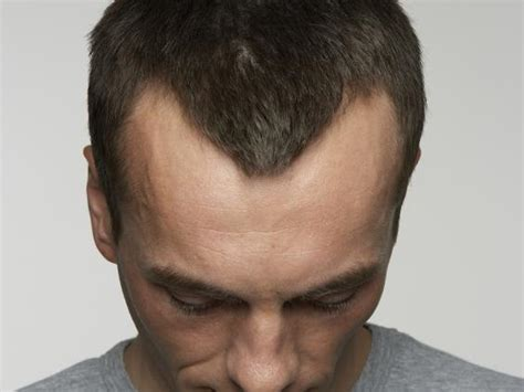 hair loss explained how and why men go bald the independent