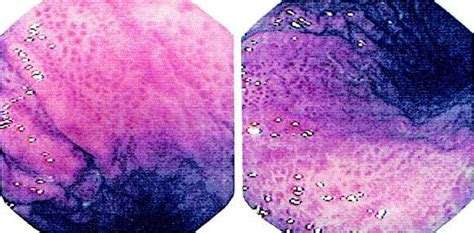 mosaic pattern mucosa gastric mucosal responses to intrahepatic portosystemic